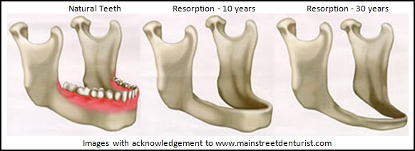 resorption